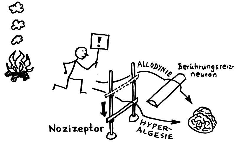Bei Hyperalgesie wird die Erregungsschwelle eines Nozizeptors abgesenkt, bei Allodynie werden andere primäre afferente Neuronen zu Nozizeptoren.